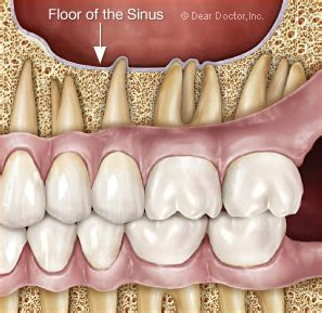does sinus infection cause face and teeth pain picture 1