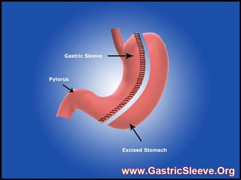 ticker countdowns for weight loss gastric sleeve picture 2