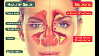 chronic sinusitis and fungus and natural treatment picture 18