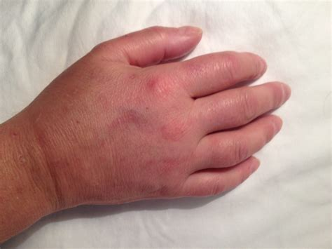 medal carpal joint picture 17