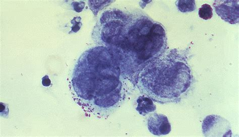 can herpes cause fasciculations picture 3