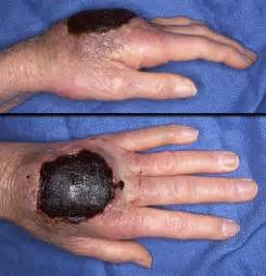 muscle hematoma picture 9