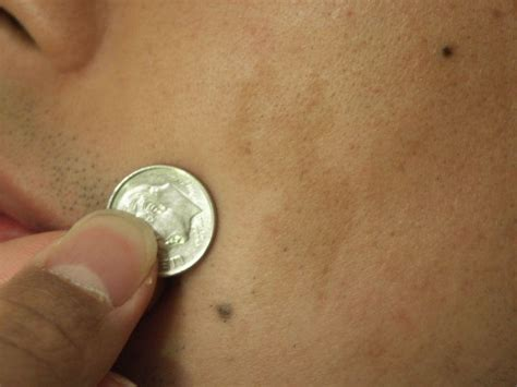 dry red skin patches picture 13