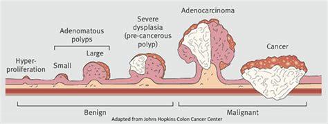 polyps in colon picture 1