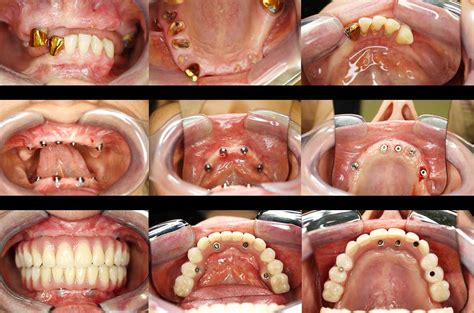 all teeth picture 7