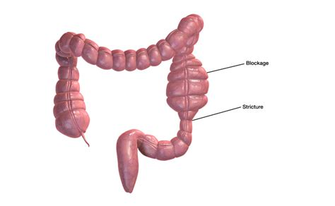 diet for people with no small intestine picture 8