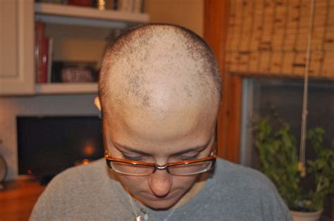 chemotherapy hair loss picture 18