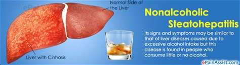 meds that damage the liver picture 18