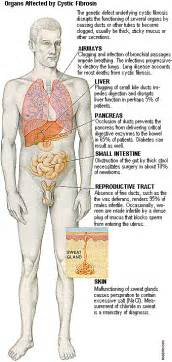 systic fibrosis diet picture 4