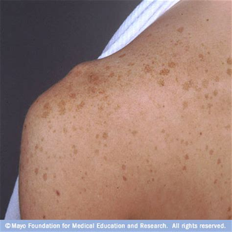 lightened skin patches picture 3
