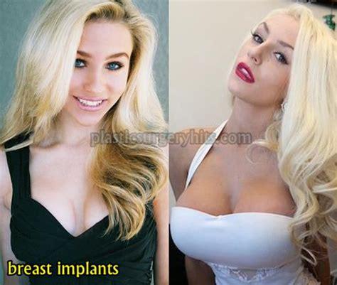 dallas breast enlargement surgery picture 11
