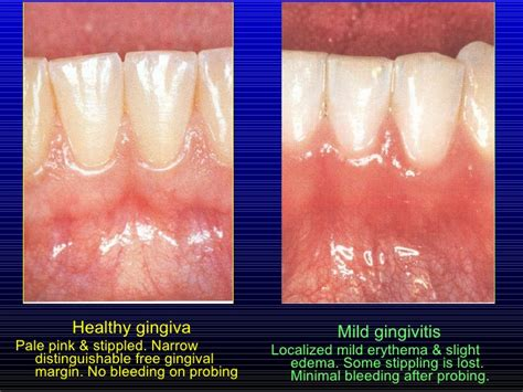 healthy teeth picture 3