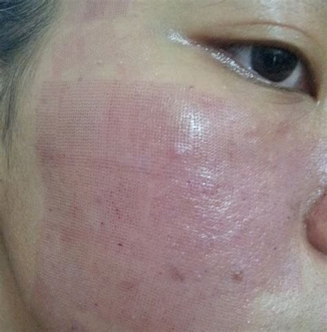 laser resurfacing pictures acne scars picture 13