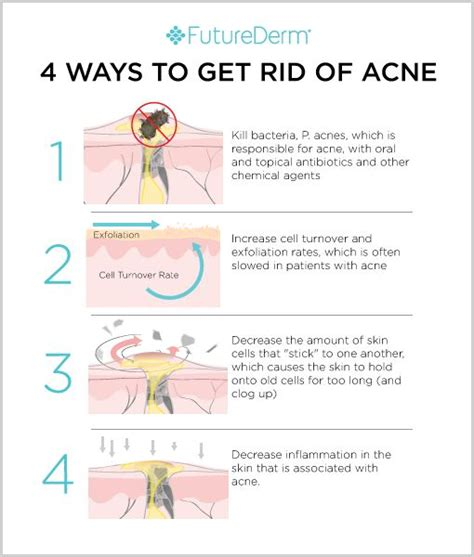 ways to get rid of acne picture 2