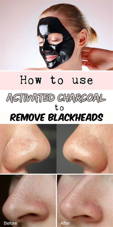 activated charcoal for hair removal picture 7
