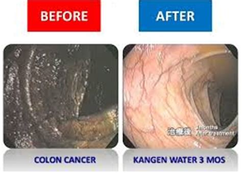 colon cleansers good or bad picture 2