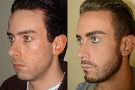 cost of male nose enhancement in the philippines picture 12