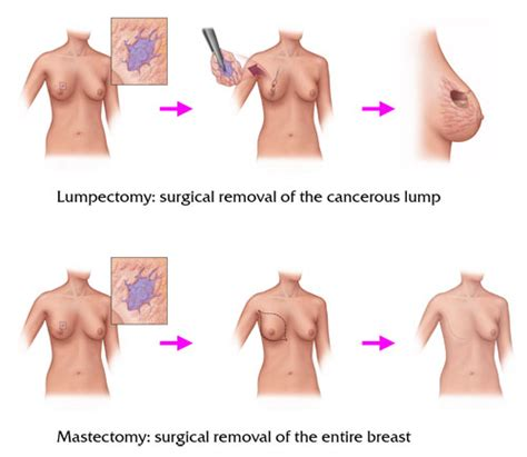 breast cancer treatment cpt 2014 picture 6