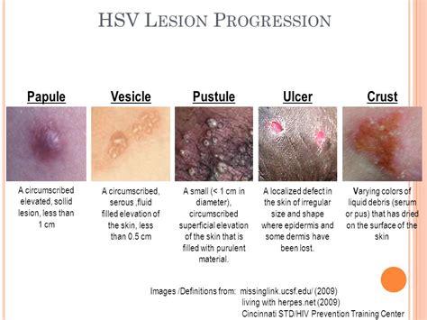 genital skin lesion picture 5