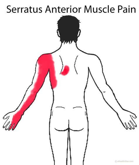 thyroid and muscle arm aches solution picture 5