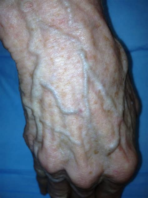 inflamed and painful penis after ing picture 23