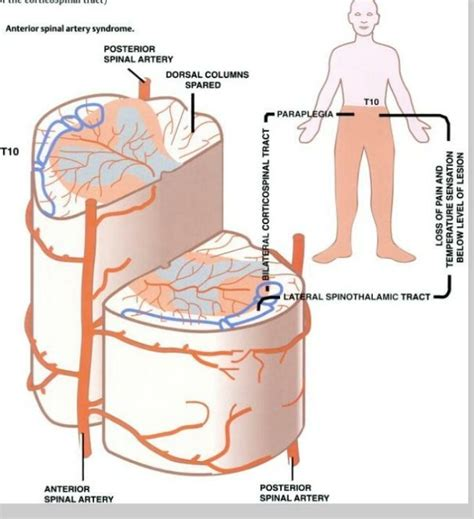 spastic bladder picture 5
