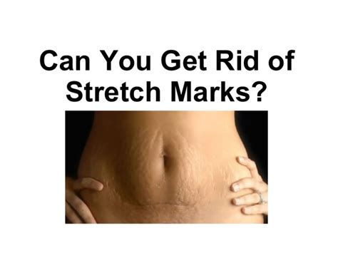 how can you get rid of stretch marks picture 1
