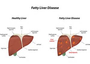 non alcoholic fatty liver picture 13