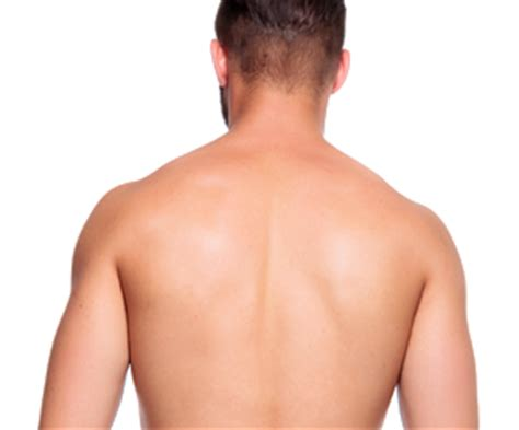back hair removal reviews picture 3