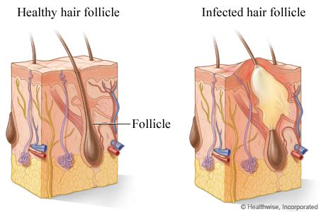 inflamed hair follicle on vagina picture 17