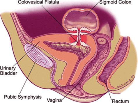 colon fistula surgery picture 10