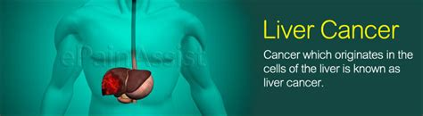pain with liver cancer picture 9