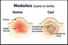 nodnuel cystic acne medical definition picture 6
