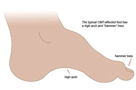 charcot marie tooth picture 1