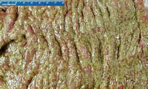 bowel c diss picture 5