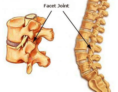 traumatic degenerative joint disease picture 5
