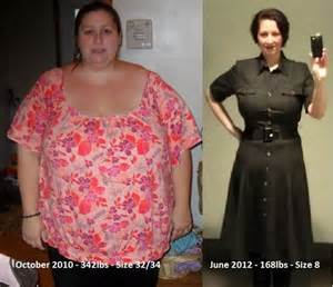 weight loss with gastrobyp picture 10