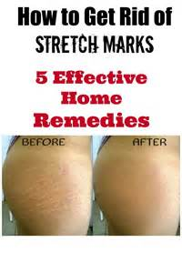 get rid of stretch marks picture 6