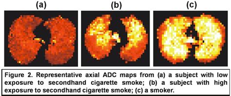 second hand smoke diseases picture 1