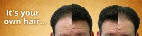 cincinnati laser hair picture 11