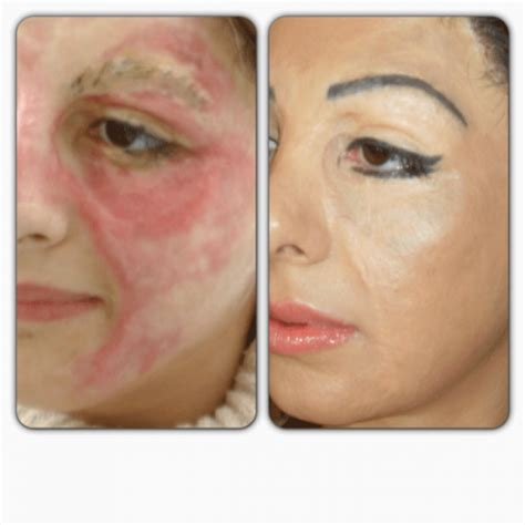 care for skin graph sites picture 11