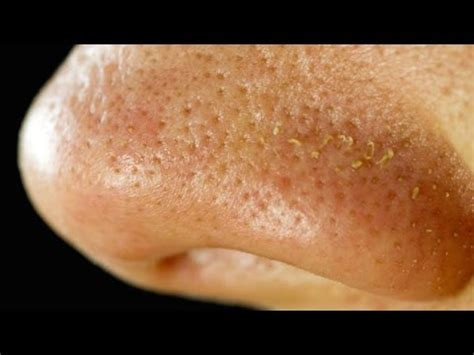 skin crawling acne picture 10