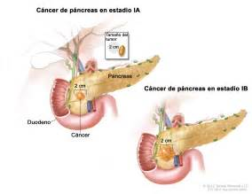 liver biopsy shows cancer picture 7