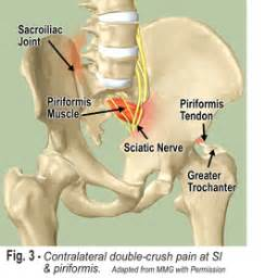 joint and nerve pain picture 1