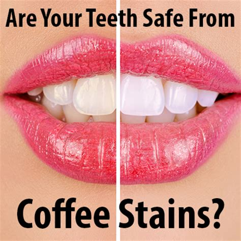 does coffee stain teeth picture 1