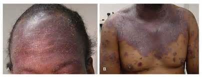 skin lesions of hiv positive patients picture 10