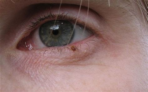 pain after wart removed from eyelid picture 4