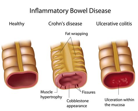 fungal etiology of inflammatory bowel disease picture 1