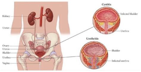 can you have uti after having bladder removed picture 1