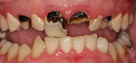 decaying teeth pictures picture 1